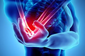 Picture of enhanced xray technology for elbow pain