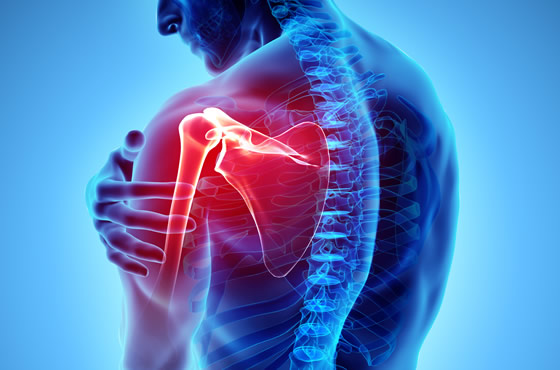 Treatment of shoulder injuries